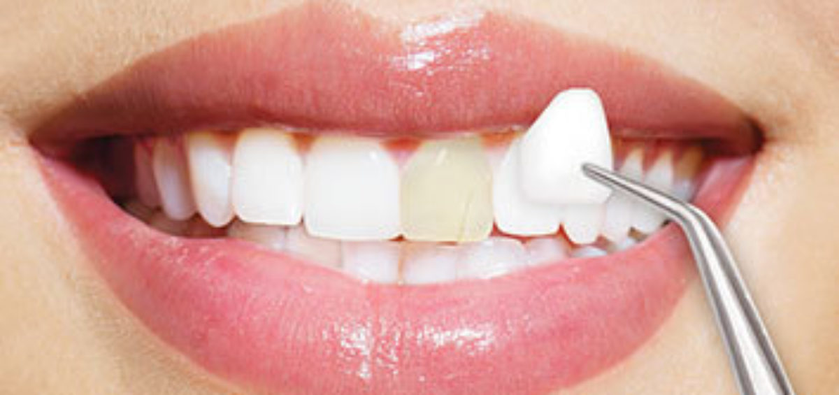 Interested in Veneers? - David S. McGuire, DDS